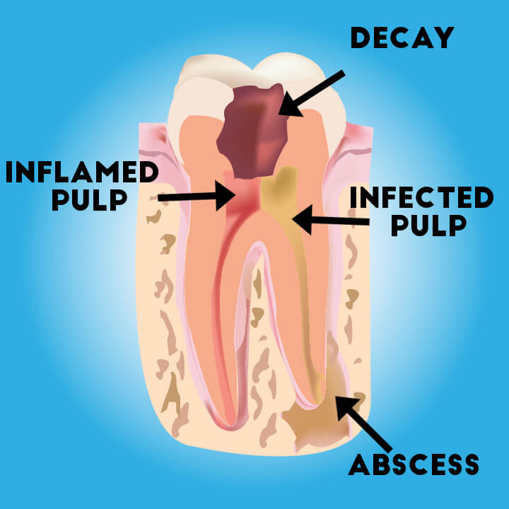 Illustration of tooth decay, abscess, inflamed and infected pulp